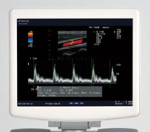 Специальный медицинский монитор высокого качества
