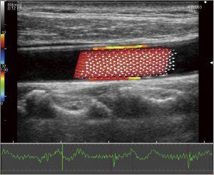 Векторное картирование кровотока в сосудах (VFM Vascular)